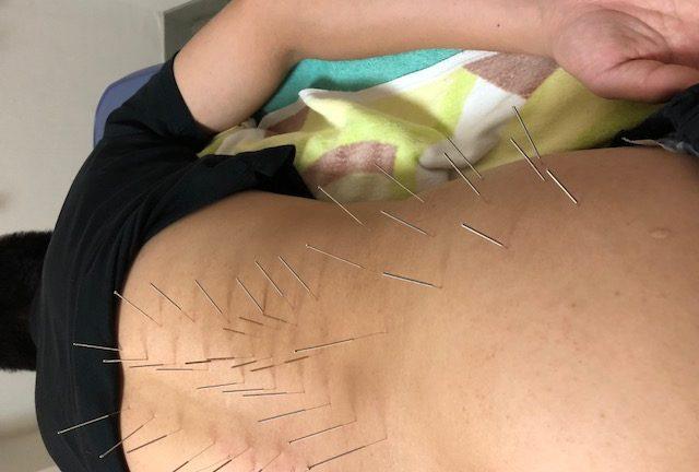 腰への刺鍼の写真