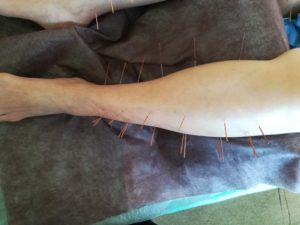 脛への刺鍼画像