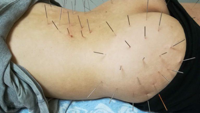 腰臀部刺鍼画像