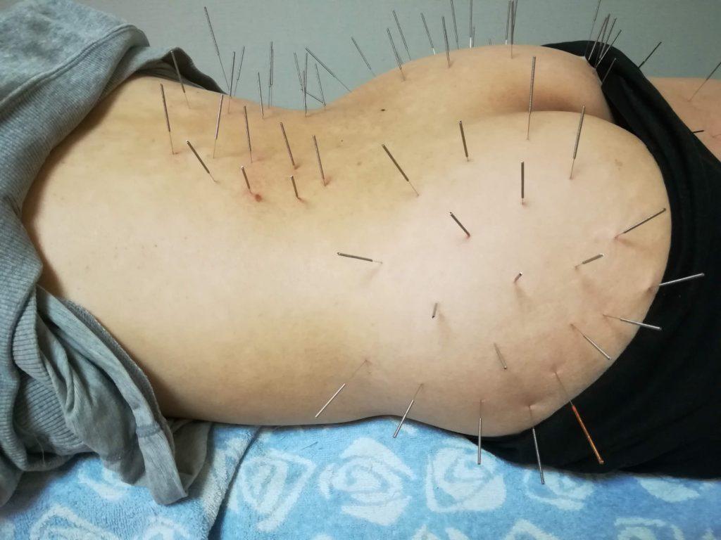 腰部の施術写真