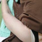 腕の痛みの鍼治療